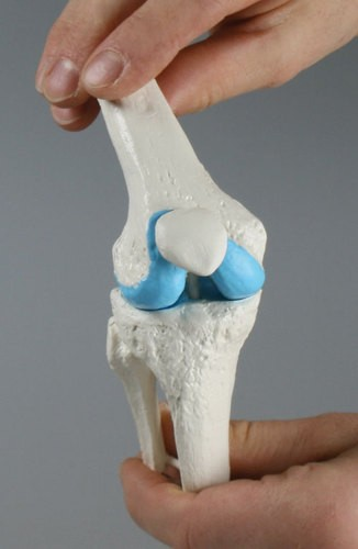 Knie-Implantat-Modell