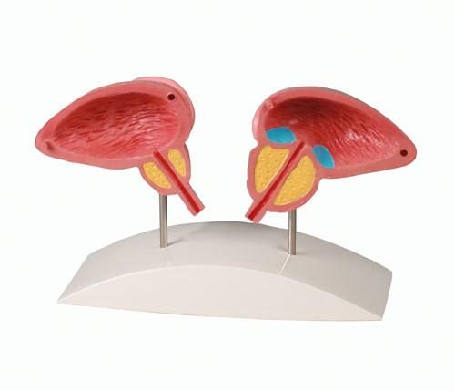 Prostata Modell, 2-teilig