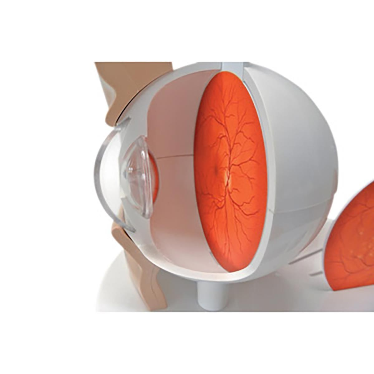 Pathologisches Auge