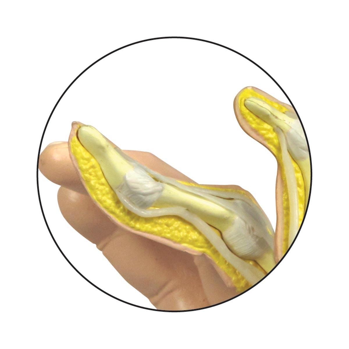 Handmodell mit rheumatoider Arthritis