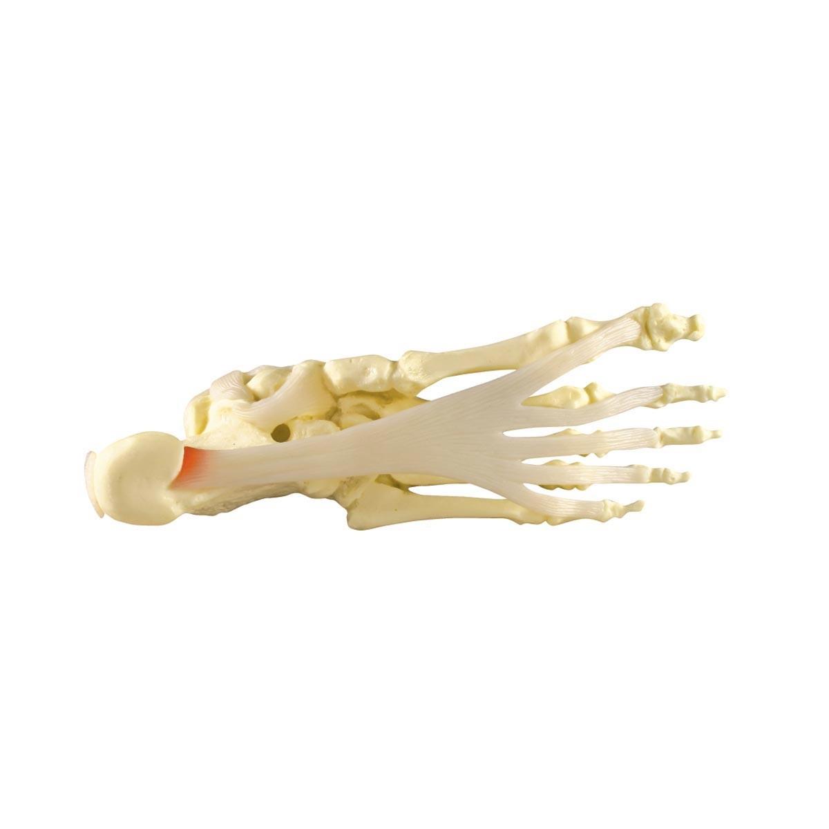 Modell des Fußes/Knöchels mit Plantarfasziitis