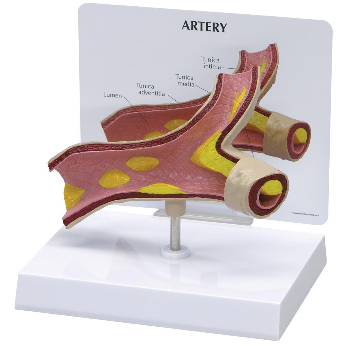 Arterienmodell