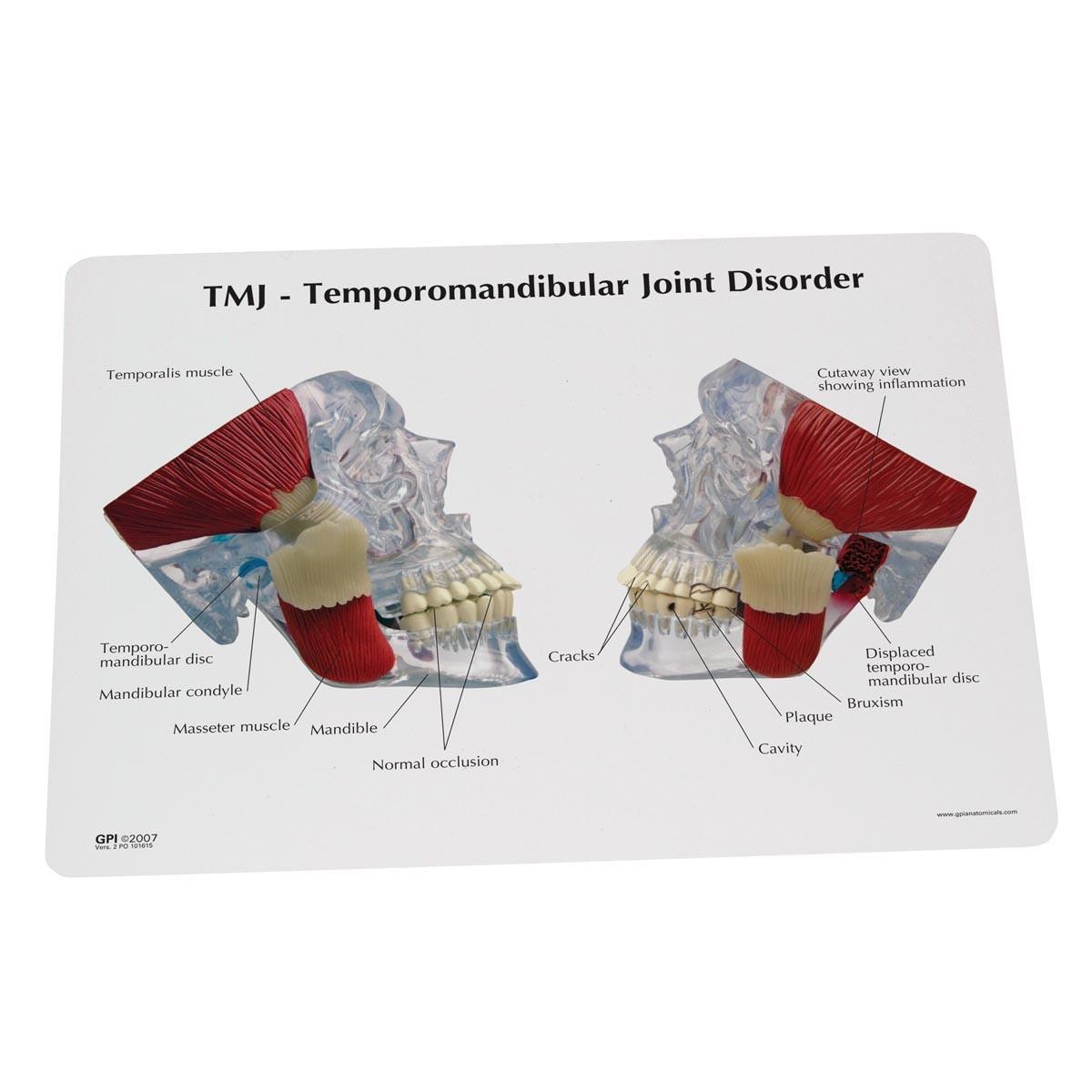 TMJ Modell