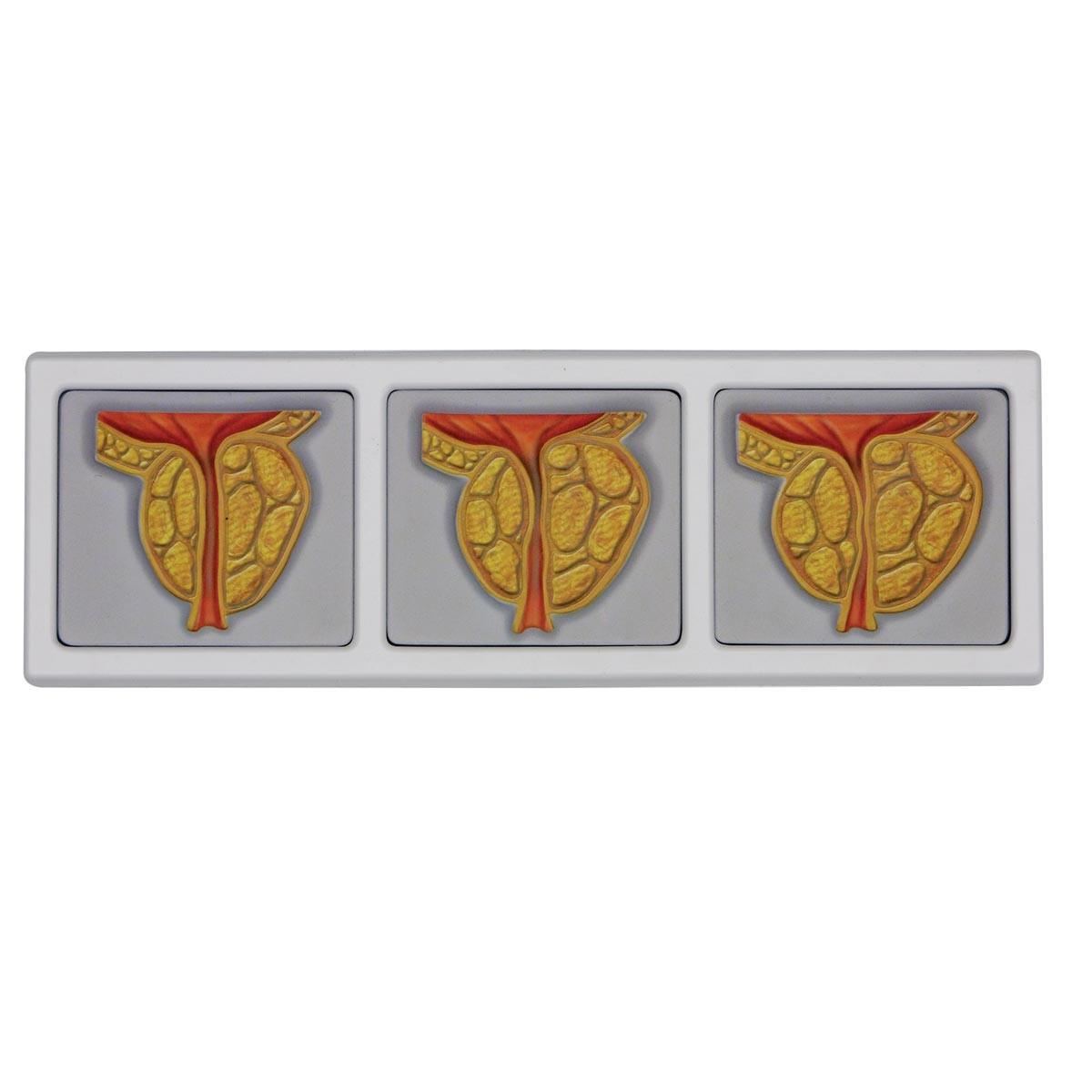 Männliches Becken mit 3D-Prostata-Rahmen