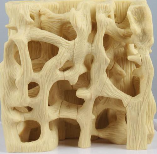 Vergleichsmodell gesunde / osteoporotische Knochenstruktur