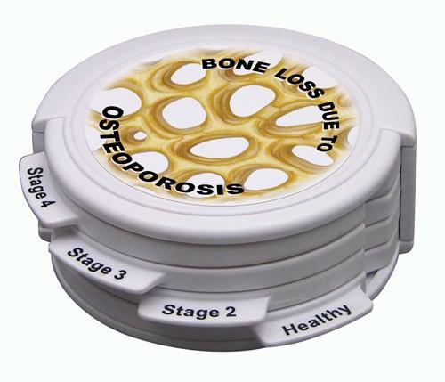 Osteoporosestadien, Scheibenmodell