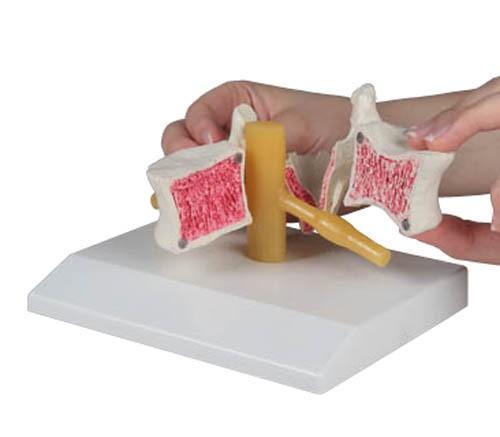 Osteoporose-Wirbel, 2-fach vergrößert