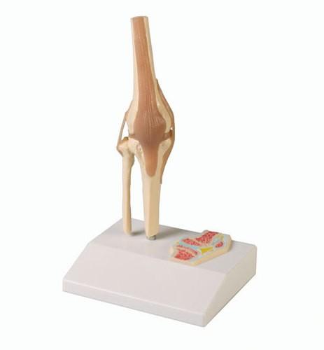 Mini-Kniegelenkmodell mit Querschnitt