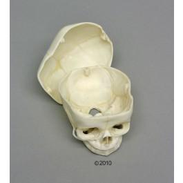 Fetusschädel, 40 Wochen, mit abnehmbarem Schädeldach