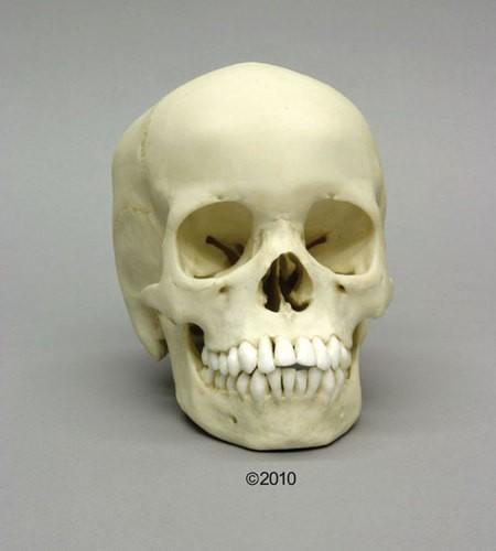 Menschlicher Schädel, 13-jährig