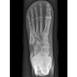 Röntgenphantom Fuß, opak