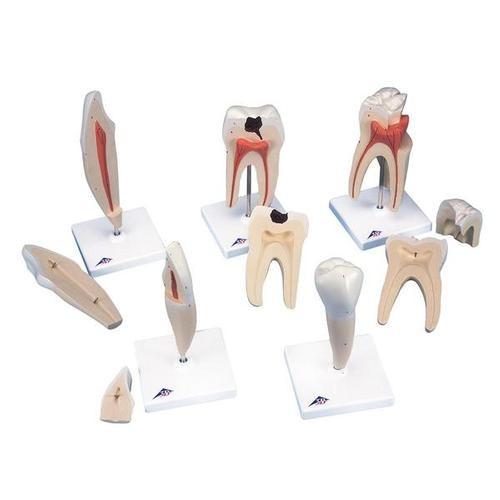 Zahnmodellserie, 5 Modelle