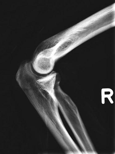 Ganzkörper Röntgenphantom