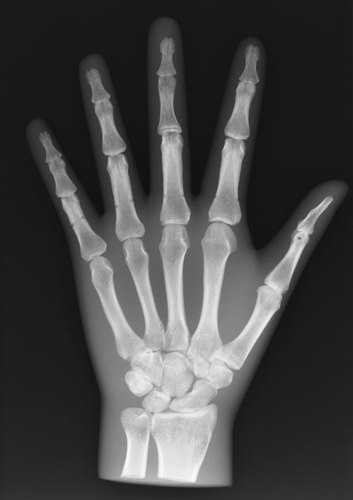 Röntgenphantom Hand, transparent