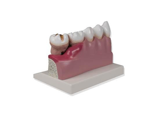 Dentalmodell, 4-fache Größe
