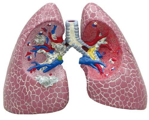 Lungenerkrankungen