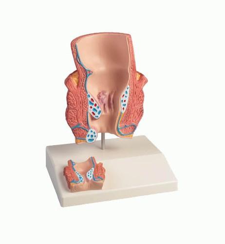 Hämorrhoidenmodell, 2-fache Größe