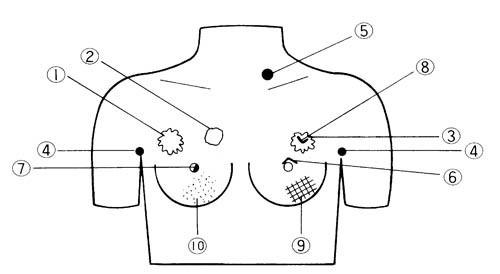 Brustkrebs-Tastmodell