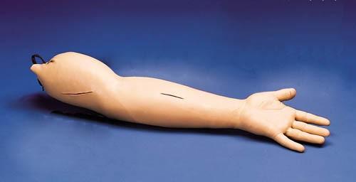 Naht-Arm