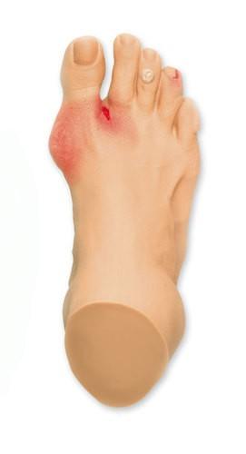 Häufige Fußprobleme