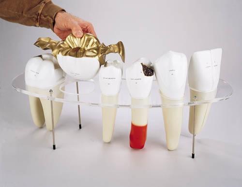 Zahnersatz-Modell, 7-teilig, 10-fache Größe