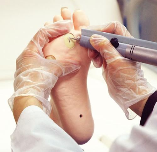 Übungsmodell medizinische Fußpflege