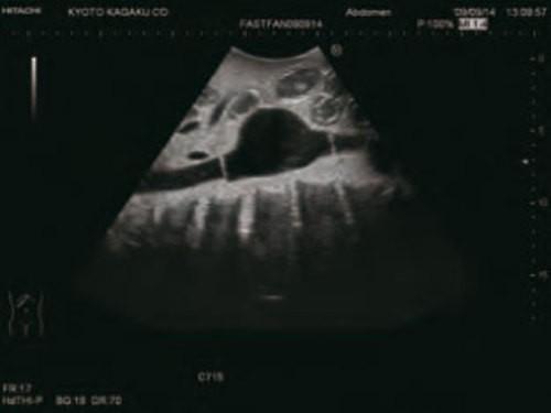 FAST-Ultraschall-Untersuchungsmodell