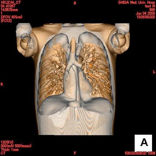 Ganzkörper CT Phantom