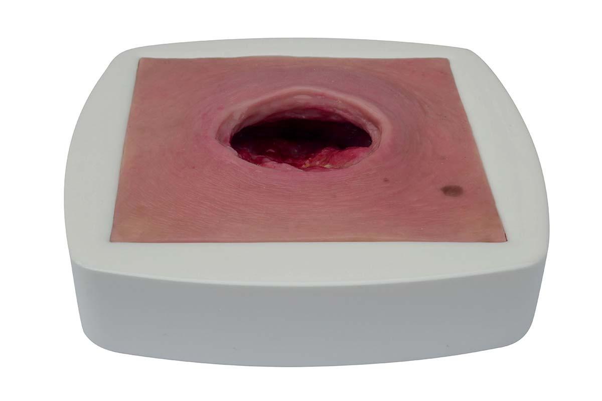 Dekubitus, tief (Tischmodell im Rahmen) 1
