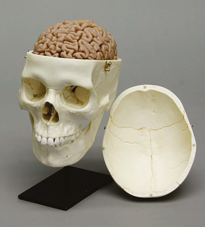 Menschliches Gehirn, Naturabguss 1
