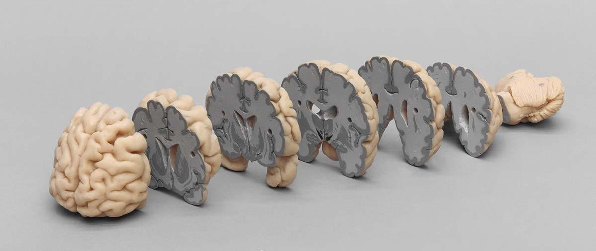 Menschliches Gehirn in Frontalschnitten 1