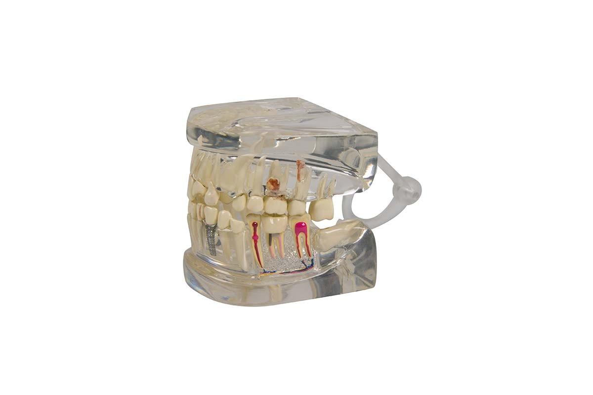 Transparenter menschlicher Kiefer mit Zähnen 1