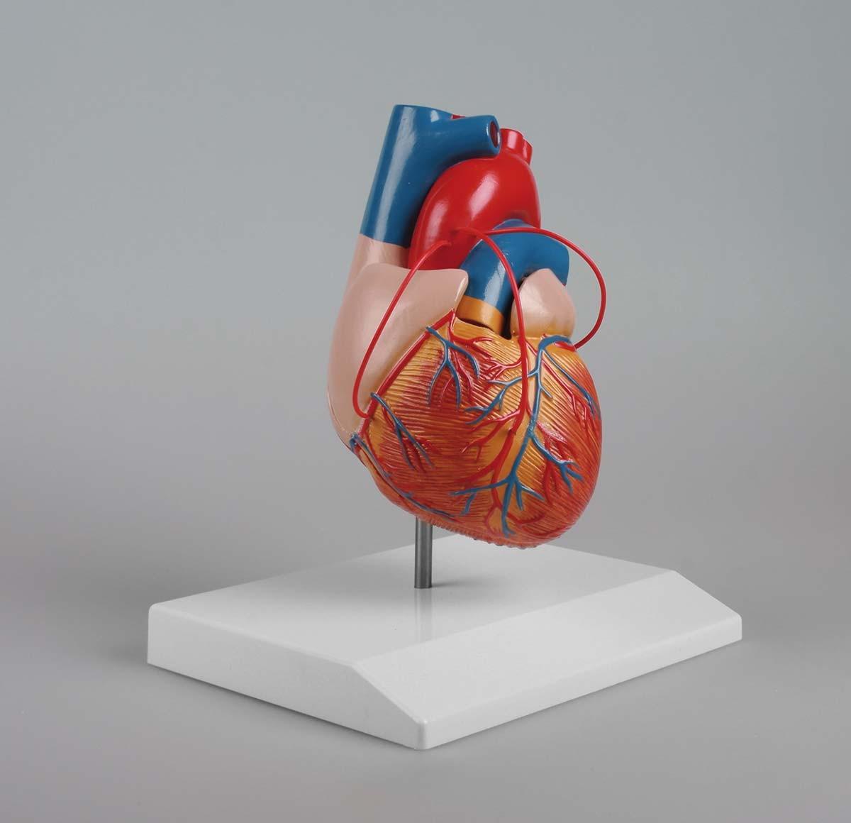 Herz mit Bypass 1