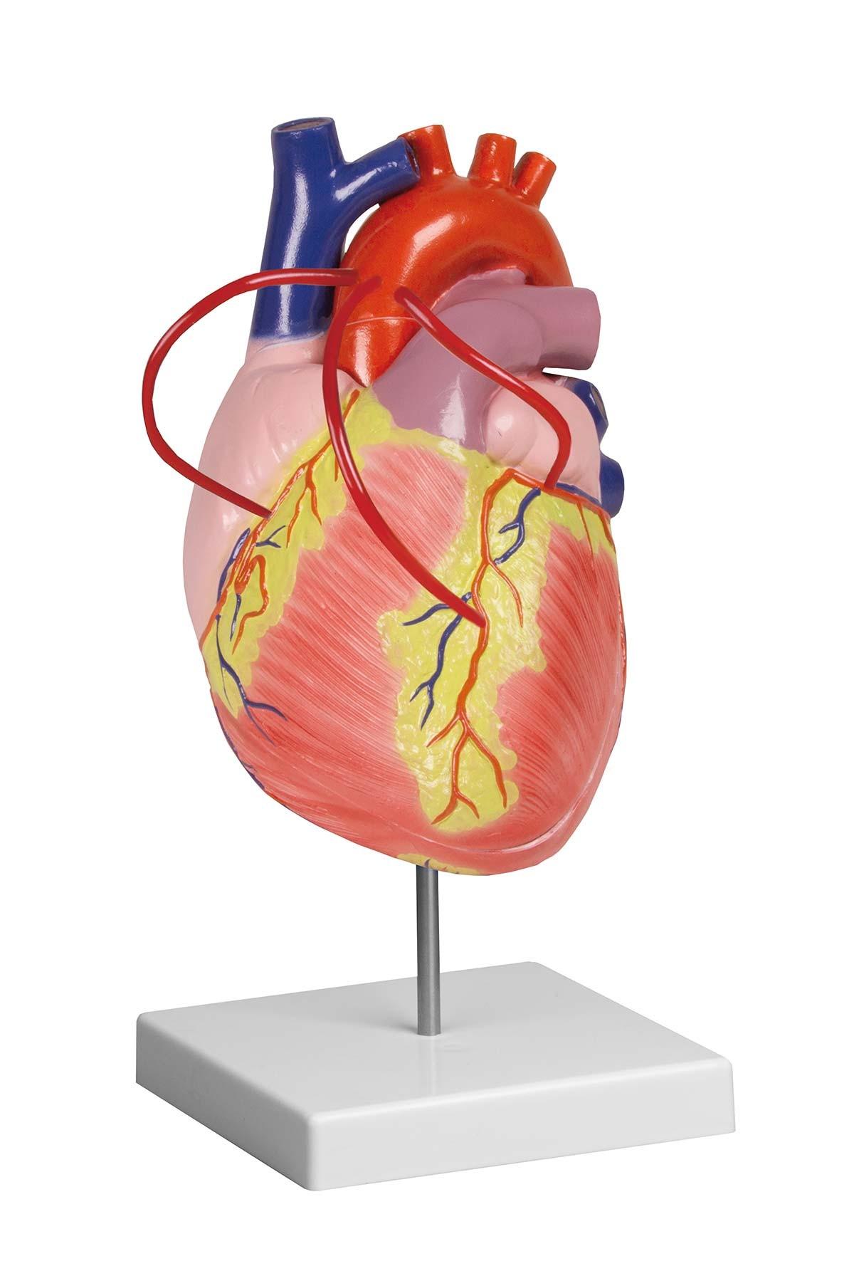 Herz mit Bypass, 2-fache Lebensgröße, 2 Teile 1
