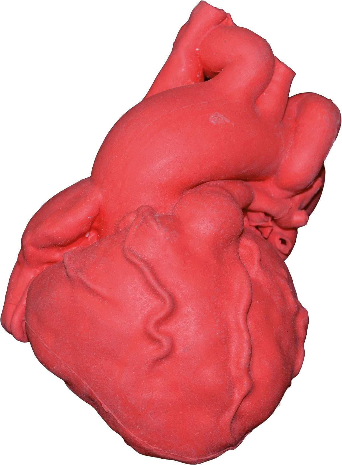Pädiatrisches Herz mit Fallot-Tetralogie (TOF) 1
