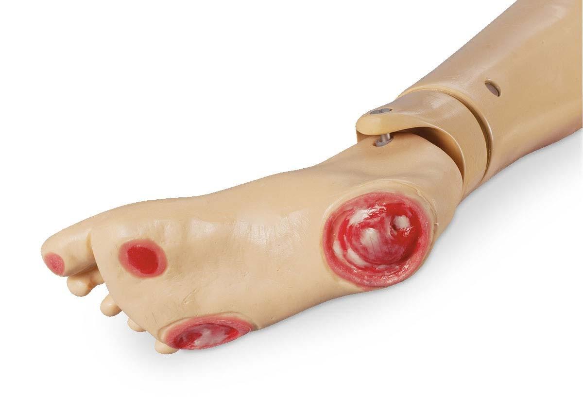 Druckgeschwür-Fuß für GERi und KERi 1