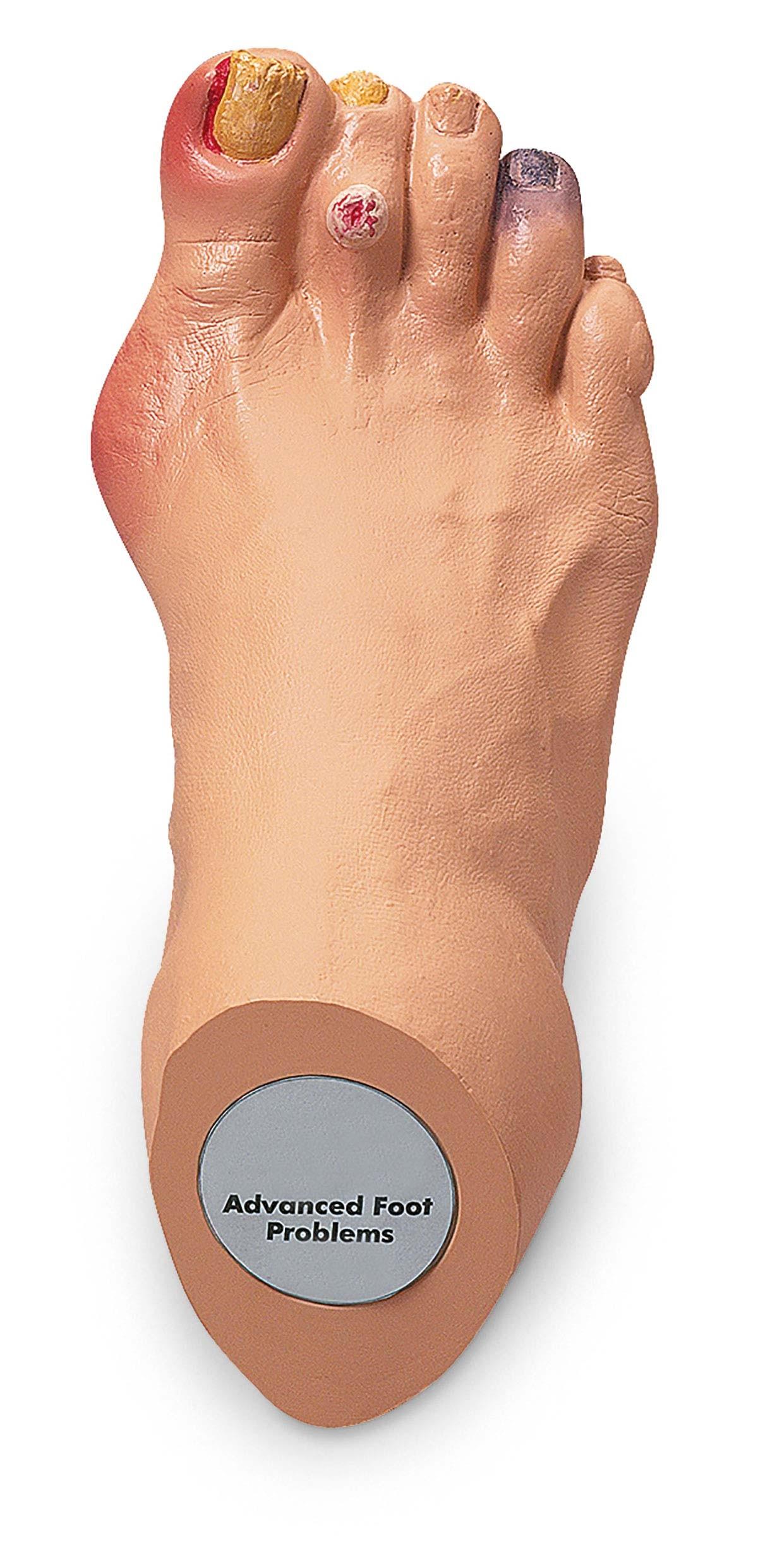 Erweiterte Fußprobleme 1