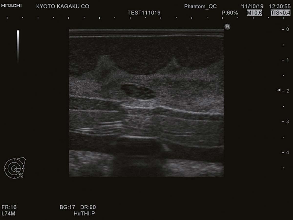 Ultraschalluntersuchungsphantom-Brust 1