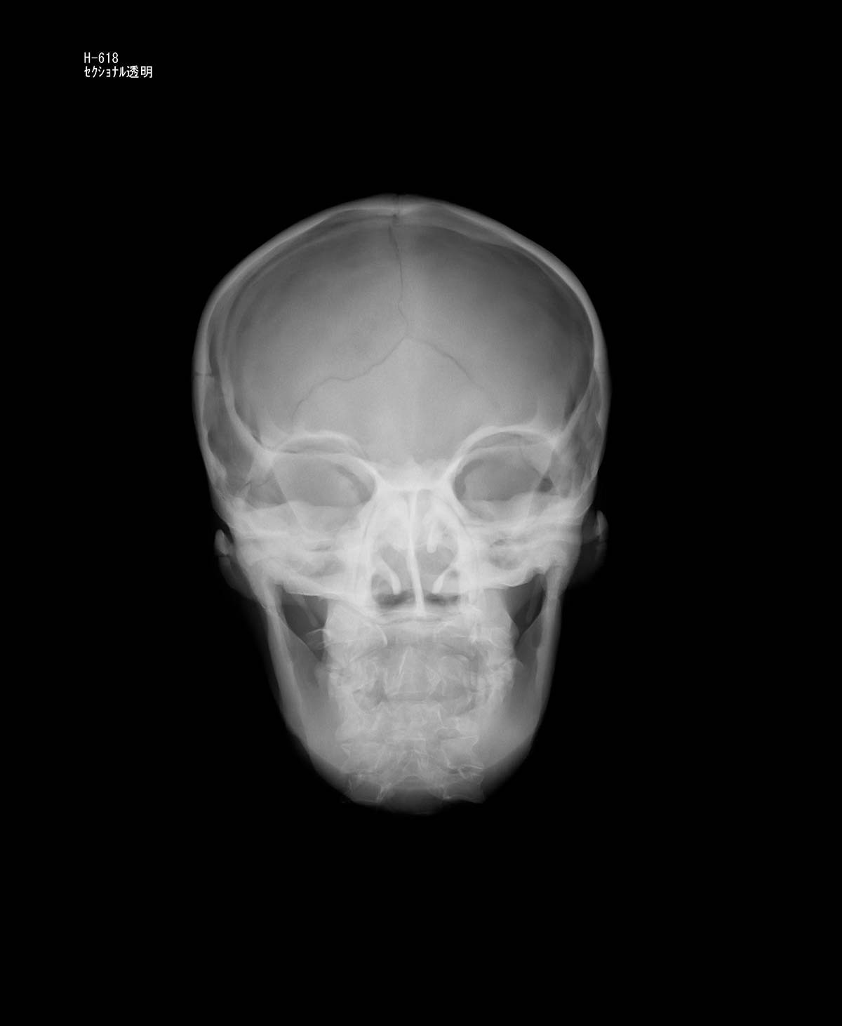 Röntgen-Teilphantom mit künstlichen Knochen - Kopfphantom, opak 1