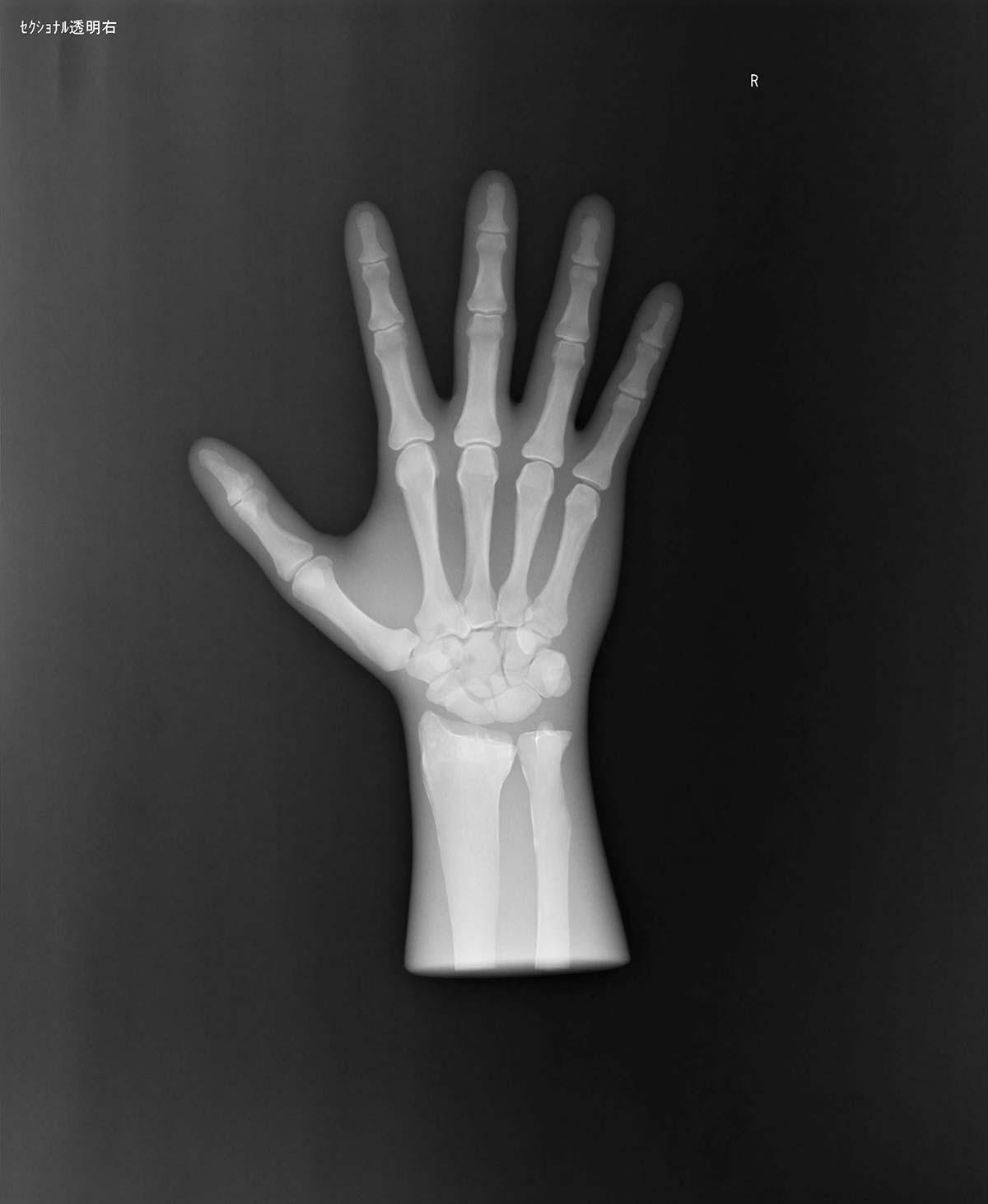 Röntgen-Teilphantom mit künstlichen Knochen - Rechte Hand, transparent 1