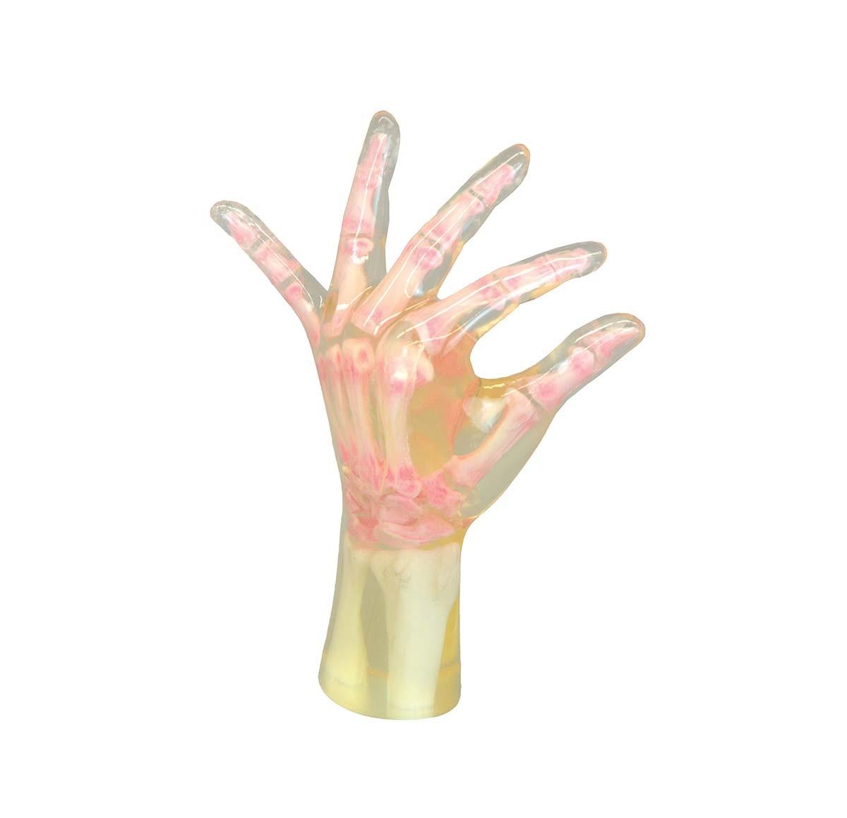 Röntgen-Teilphantom mit künstlichen Knochen - Linke Hand, transparent 1
