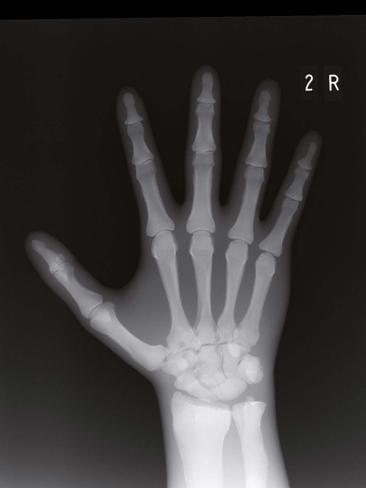 Frakturenhand mit Unterarm für Modulares Ganzkörper Röntgenphantom 1