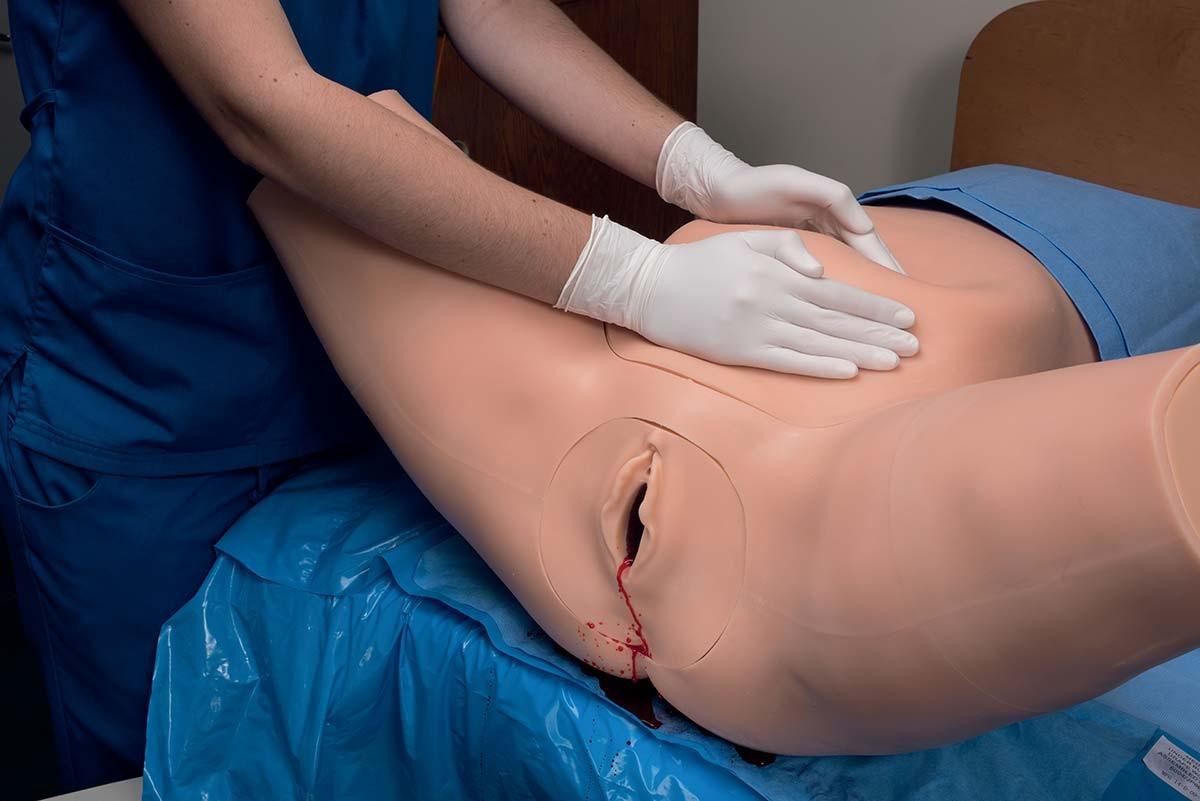 Modul Postpartale Blutung für Super OB Susie 1