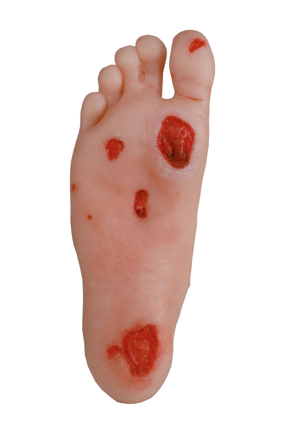 Diabetes Fuß 2