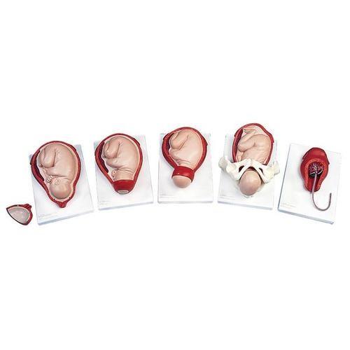 Geburtsstadien-Modell
