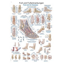 """Lehrtafel """"Fuß und Fußerkrankungen"""""""