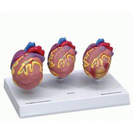 Herzerkrankungs-Modell