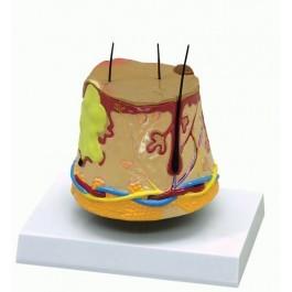 Haut-Akne-Modell