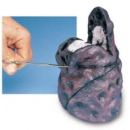 Lungenkrebs-Modell