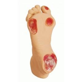 Senioren-Druckgeschwür-Fuß
